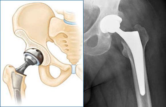 Операции по замене тазобедренных суставов их цены москва гимнастика при сгибательных контрактурах в локтевом суставе